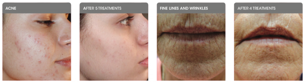 Dermapen treatment before and after images showing skin with acne, and wrinkles around the mouth