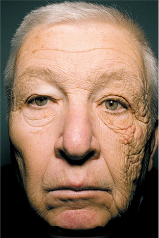 Why sunscreen is important – even on a rainy day