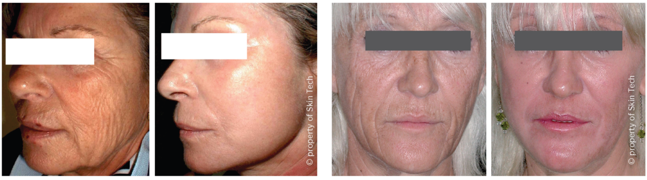 Before and After Facial Peel Image