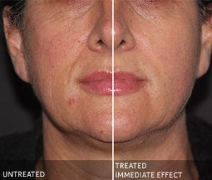 ULTRAcel before and after