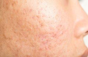 acne scars ice pick
