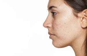 adult acne profile