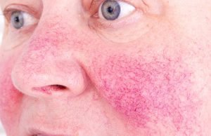 Rosacea close-up