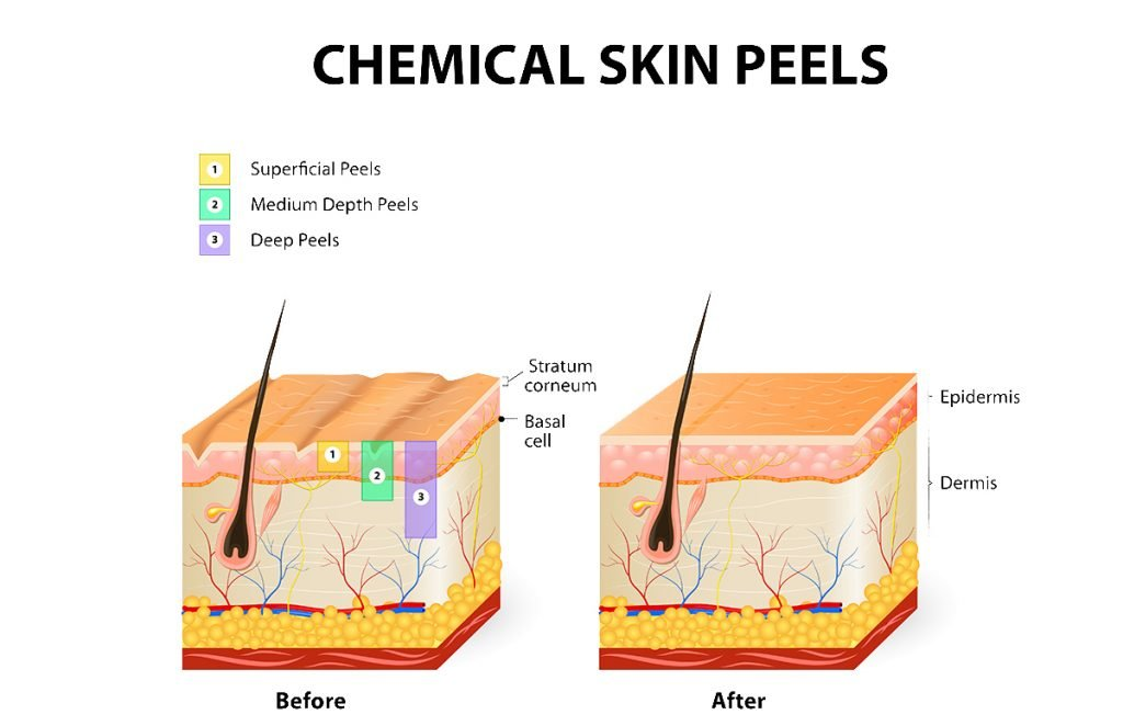 Chemical Skin Peels